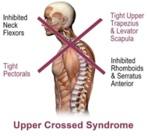 upper crossed